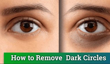 10 Natural Ways To Get Rid Of Dark Circles Under Eyes