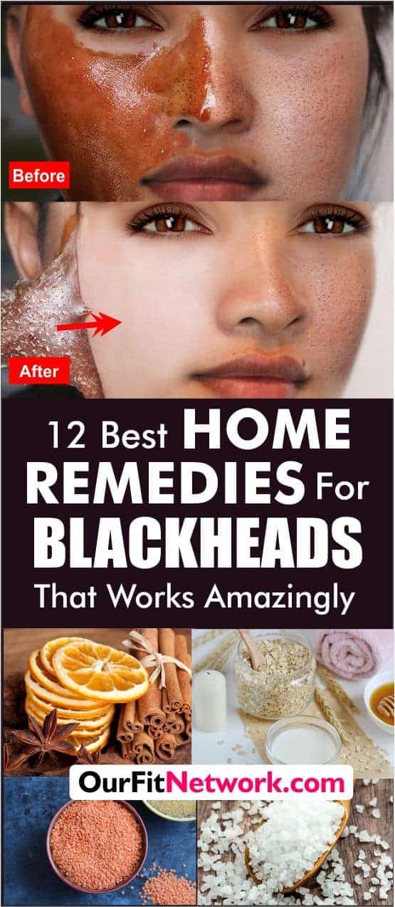 12 Best Natural Remedies for Blackheads That Works. The best homemade remedies for blackheads and whiteheads all in one place! #blackheads #whiteheads #naturalremedies