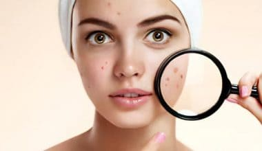 12 Best Home Remedies for Blackheads That Works