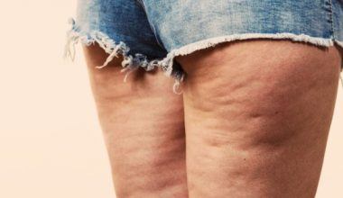 Woman legs with cellulite skin