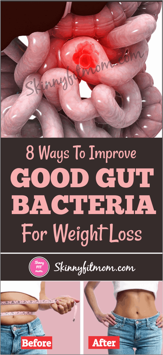 Healthy Gut Bacteria Diet - Best Ways to Increase Your Good Gut flora / Bacteria. For Weight Loss, Beat Anxiety & Allergies. This will also fix your leaky gut. Try It!