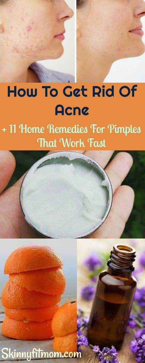 Here's How To Get Rid Of Acne fast + 11 Home Remedies For Pimples That Work like magic. #Acnetreatment #Acne #Pimples #skincare