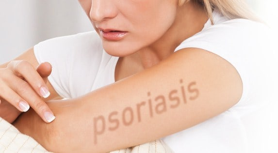 Mosturize- 13 Magical Homemade Psoriasis Treatment Never Revealed Before