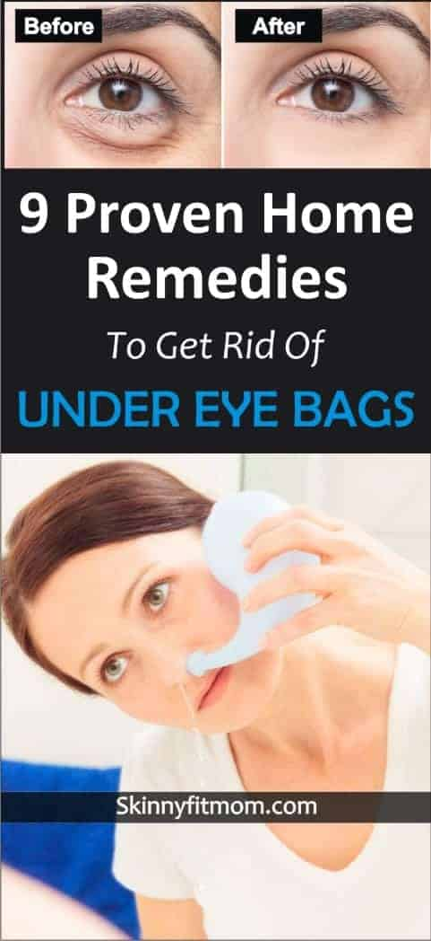 Learn how to get rid of under eye bag. These 9 home remedies are tested and proven. They really work. #undereyebags #homeremedies