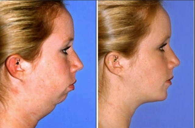 How to Lose Face Fat in 2 Weeks (7 Proven Exercises and Home remedies)