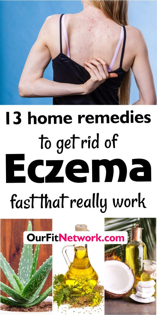 13 Home Remedies to Get Rid of Eczema that Finally Took Away Our Eczema - I have tried everything for our eczema and this effective remedies finally worked! #eczema #eczematreatment