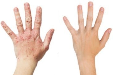 13 Magical Homemade Psoriasis Treatment Never Revealed Before
