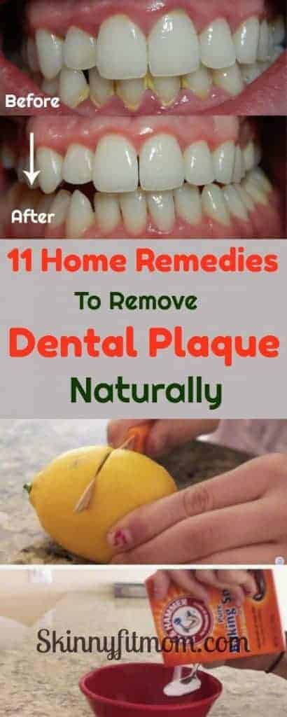 11 #HomeRemedies To Remove #DentalPlaque Naturally- Dental plaque can be very embarrassing. Remove them easily with these simple-to-make home remedies. #CleanTeeth