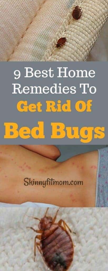 9 Best Home Remedies To Get Rid Of Bed Bugs Permanently- Bid farewell to bed bugs with these simple methods. #HomeRemedies #BedBugs #GetRidOfBedBugs