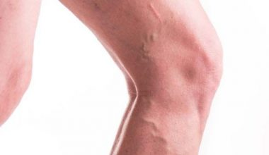 How to Get Rid of Varicose Veins Fast [Home Remedies That Work]