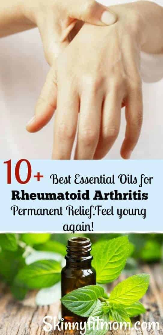 Are your joints in pain all the time? Find here 10+ Best Essential Oils For Arthritis and Joint Pain Fast Relief that works!