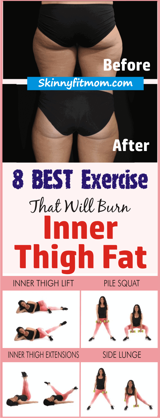 How To Lose Stubborn Inner Thigh Fat - You can achieve your ideal look by summer, and it starts today!