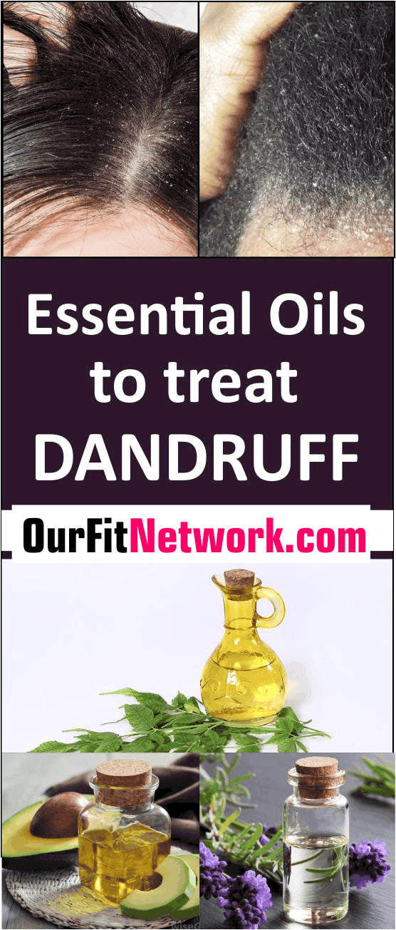 Here are all natural home remedies that use essential oils for the treatment of dandruff. These oils treat and soothe the hair to remove the build up of dry skin on the scalp. #EssentialOils #EssentialOilsForDandruff #DandruffRemedies
