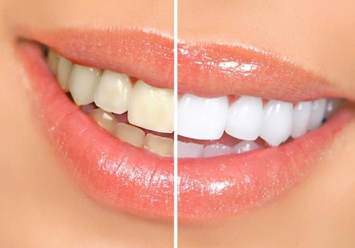 10 Best Natural Remedies to Whiten Yellow Teeth Instantly
