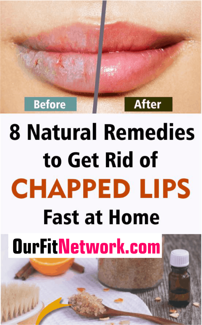Here are the best natural remedies to get rid of chapped lips fast at home. During winter months or otherwise, you will find these remedies to be effective for restoring lip shine. #NaturalRemedies #GetRidOfChappedLips #MoisturizeYourLips