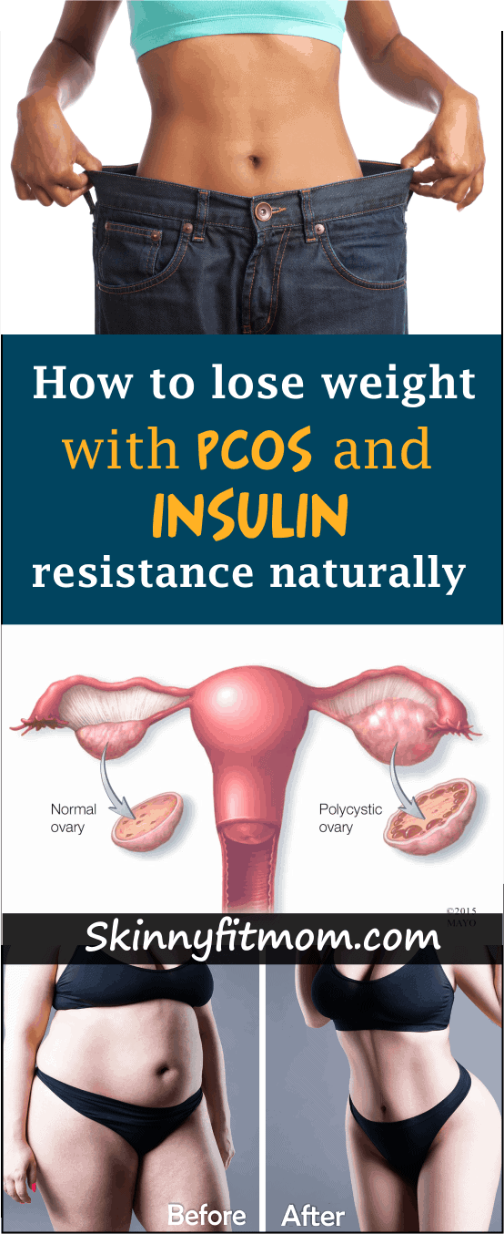 For sustainable long term results, these comprehensive and evidence based steps describe in detail how you can naturally lose weight with PCOS. #HowtoloseweightwithPCOS #PCOSdietplan #PCOS