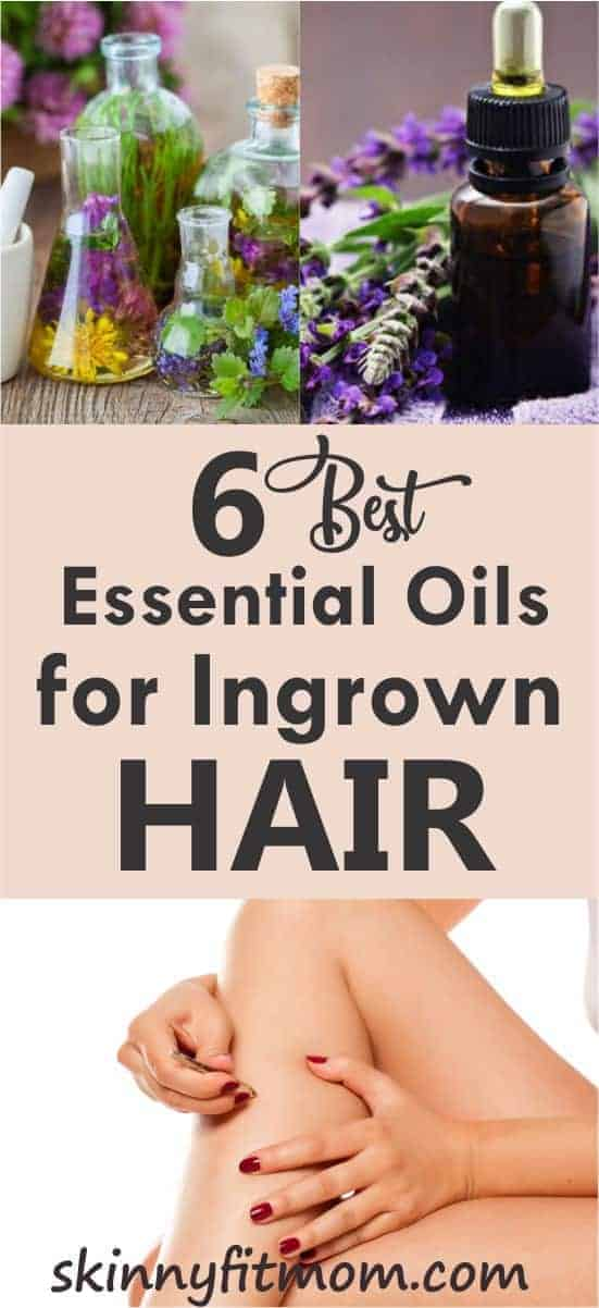 Whether you wax or shave, you probably have to deal with ingrown hairs! These essential oils to get rid of ingrown hairs works like magic! #ingrownhair #essentialoils #essentialoilsforingrownhair