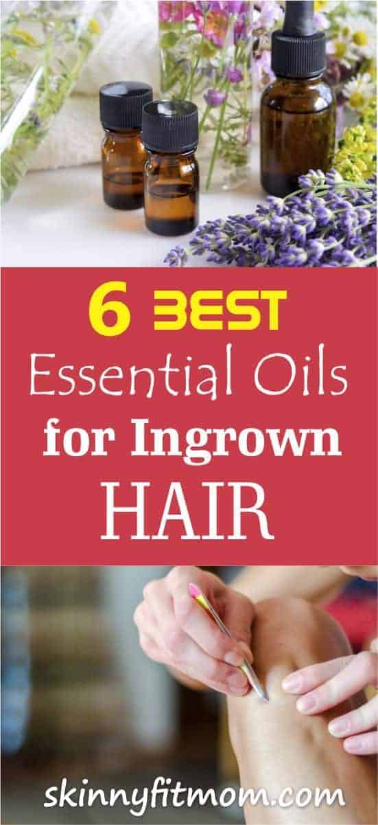 Do you want to get rid of ingrown hair fast? Here are Quick & Easy essential oils remedies to get Rid Of Ingrown Hair With essential oils!!! #ingrownhair #essentialoils #essentialoilsforingrownhair