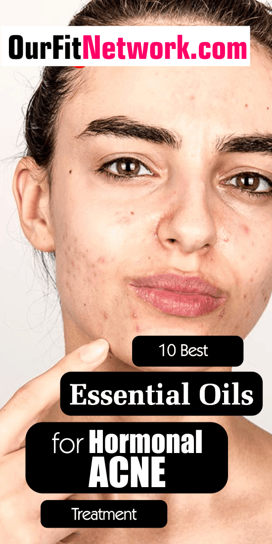 Yes, hormonal acne is normal and it often happens in women during specific biological changes however, with some essential oils be sure to say no to acne. Check out this post for more on essential for hormonal acne.