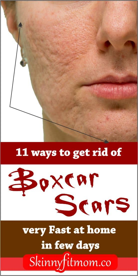 Having a boxcar scar could be very annoying as it gives the face a funny look. A lot o people try clearing it but getting the right treatment is the ish. Here are 11 proven remedies to get rid of boxcar scars fast. #scars #boxcarscarsremedy #skincare