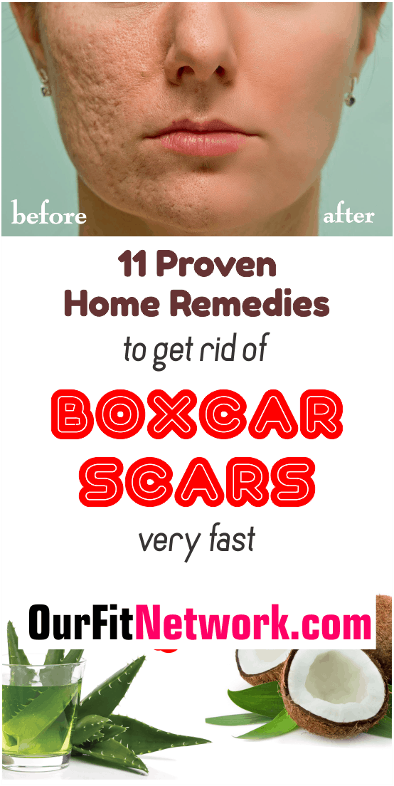 Looking for fast home remedies to clear of boxcar scars in no time? Check out these home remedies to have a flawless skin. Explore this post for more on boxcar scars natural treatment.
