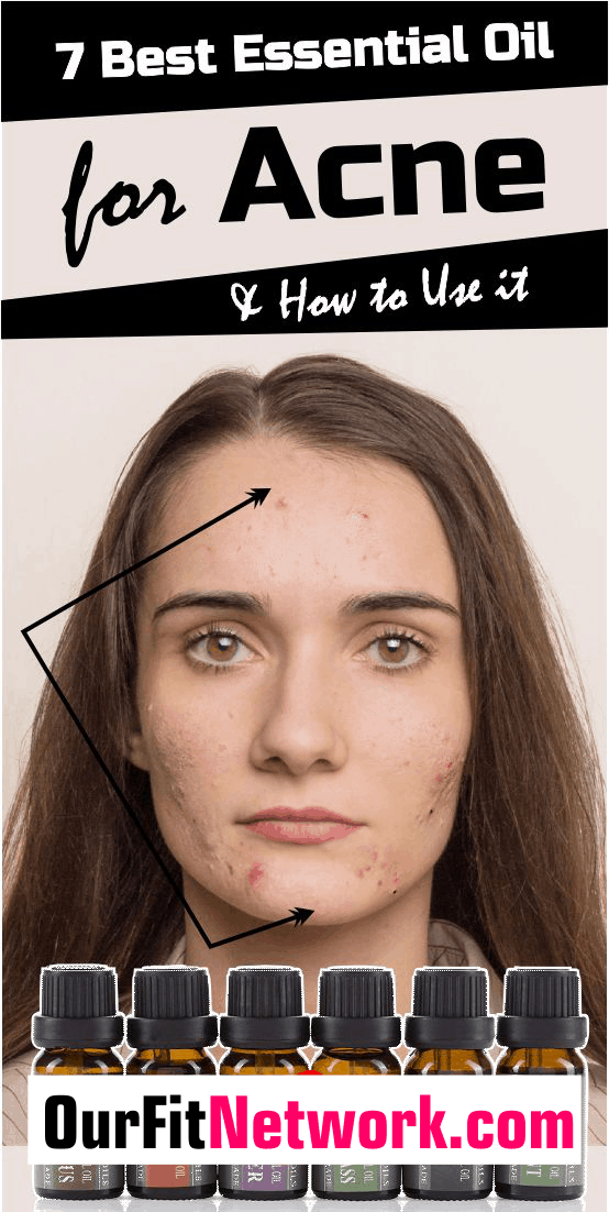 The best treatment for any type of acne is essential oils. There are various essential oils for different body conditions. Here are the 7 best essential oils for acne and pimple. Check out this post for how to use it.
