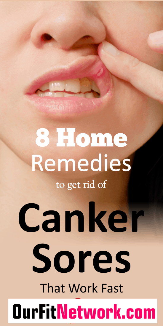 With the discomfort that comes with canker sore, getting rid of it quickly will be the most important thing to us. Looking for natural ways to get rid of canker sore? Check out this post 8 home remedies to get rid of canker sore fast.