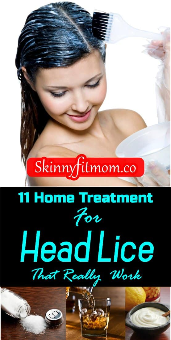 Head lice can take the peace out of your day with itchy scalp and other symptoms. However, with these 11 home remedies for head lice, be ready to get rid of it in no time..