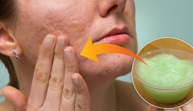 11 Proven Home Remedies To Get Rid Of Boxcar Scars Fast