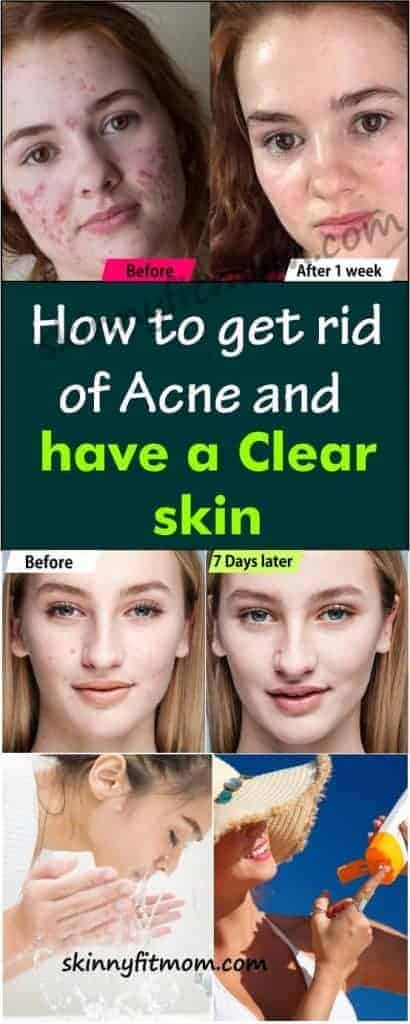 Acne breakouts are often a frustrating experience as they leave your skin with scars and red spots. Here are natural ways to rid your skin of acne and achieve clear skin at home. Continuous use of these tips also help to keep acne at bay. #Acne #ClearSkin #HowToGetRidOfAcne