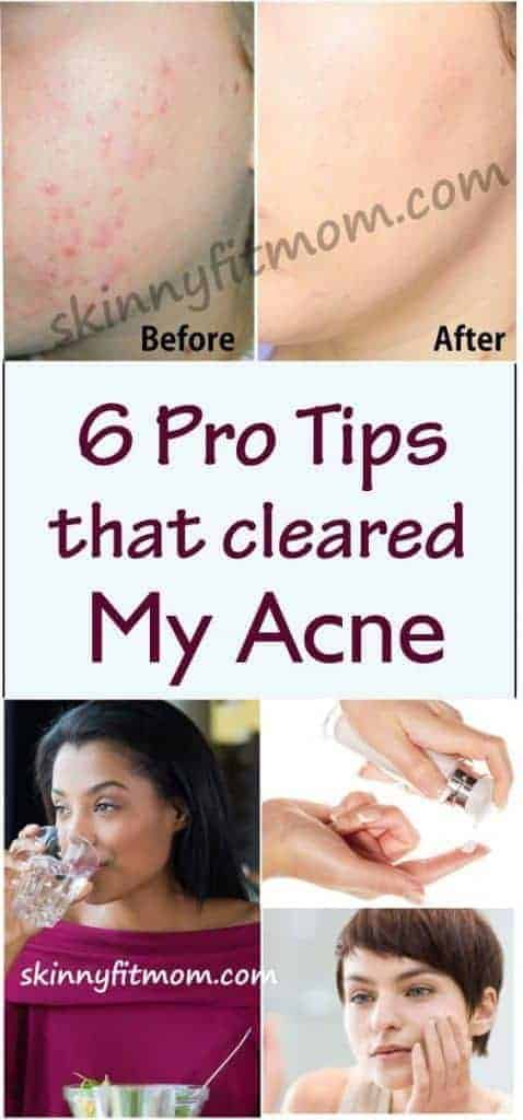 I had my own struggles with acne. It was a constant battle to get rid of acne breakout and achieve clear skin. This went on until I found some tips on preventing and healing acne that worked for me. In this post, you will find my recommended tips for getting rid of acne and achieving clear skin. Start doing them now and watch your skin regain its vitality! #Acne #ClearSkin #HowToGetRidOfAcne