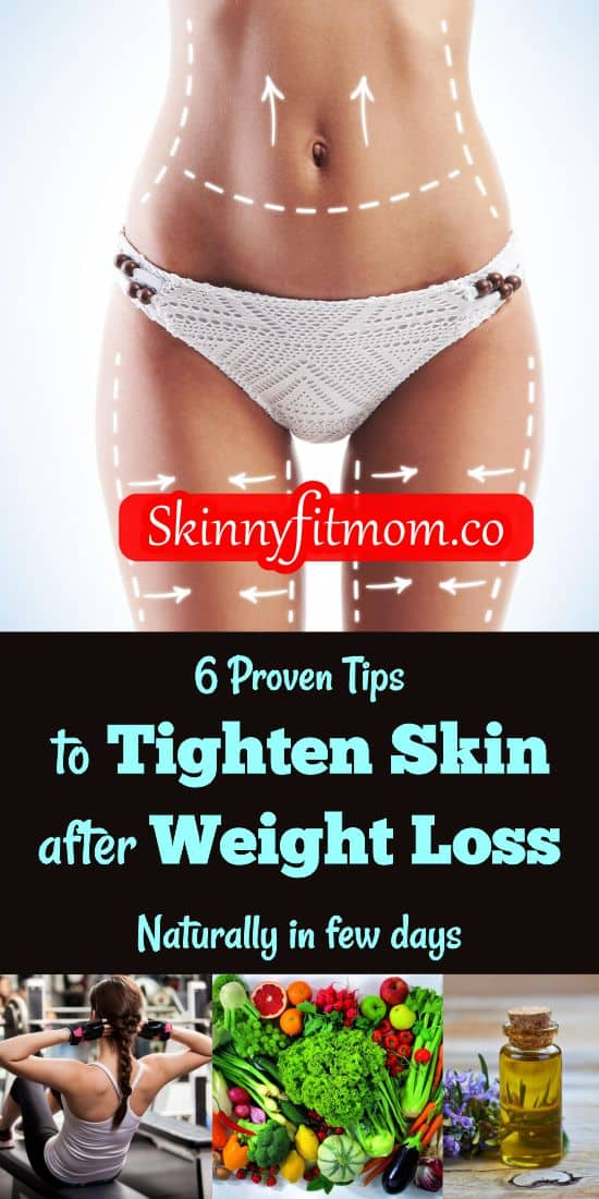 Here are amazing tips on how to get rid of loose skin naturally. With these tips, dealing with loose skin will never be an issue for you. Check out this post on the tips and how to use them.