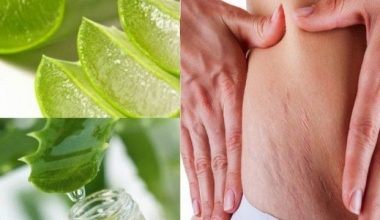 10 Proven Home Remedies to Get Rid Of Stretch Marks In Weeks
