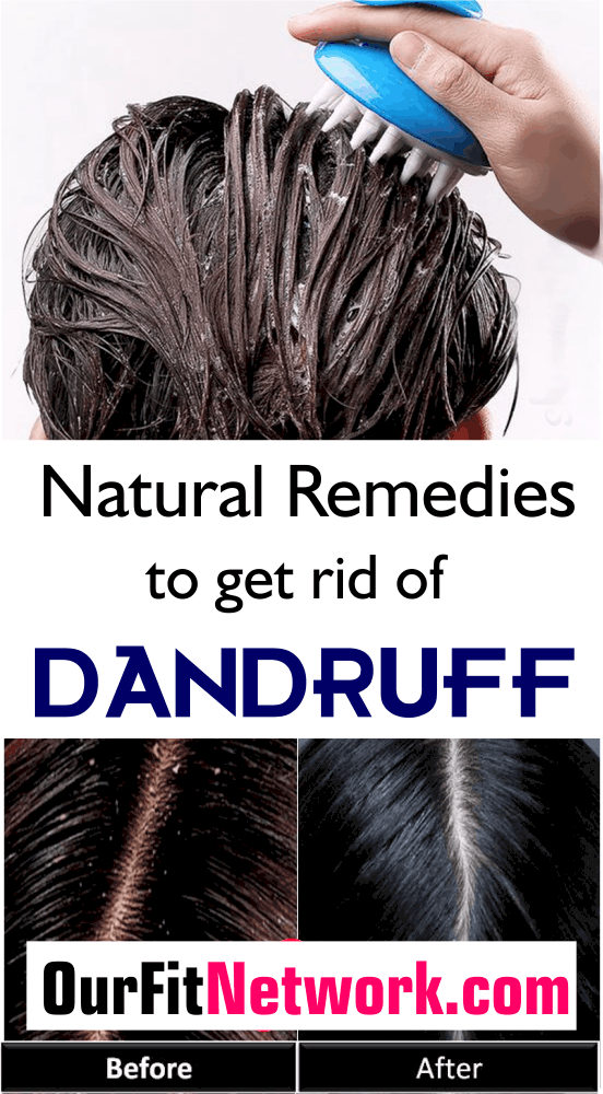 Itchy scalp and whitish particles on the hair could be annoying but with these home remedies to get rid of dandruff, you'll never get to experience that. Try out these 6 home remedies for your hair