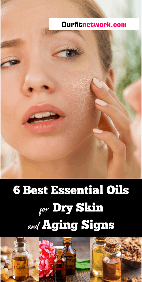 Having a dry skin makes the body looks old and scaly. A lot of people are trying to fix this put it seems impossible to them. However, with these essential oils for dry skin and aging skin, be sure to turn you skin to what you want.