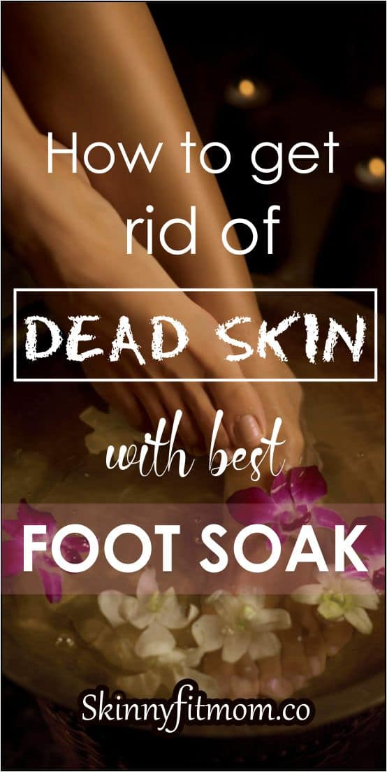 Home remedies are effective in getting rid of dead skin, calluses or cracks. So, here is a list of seven foot soak and scrub remedies to help you get rid of dead skin calluses.