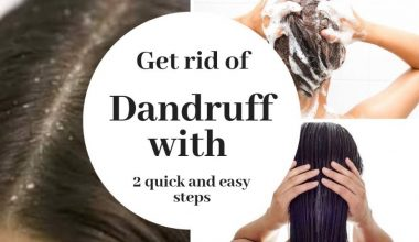 6 Best Home Remedies To Get Rid Of Dandruff For Good