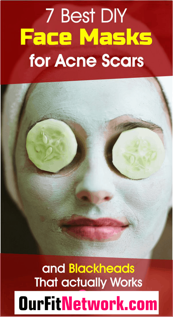 7 Best DIY Face Masks for Acne Scars and Blackheads That Work