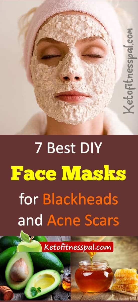 We all want flawless and smooth faces but that's a no with blackheads and acne scars. Here are 7 best diy face masks for blackheads and acne scars. #flawlessface #skincare #DIYskincar