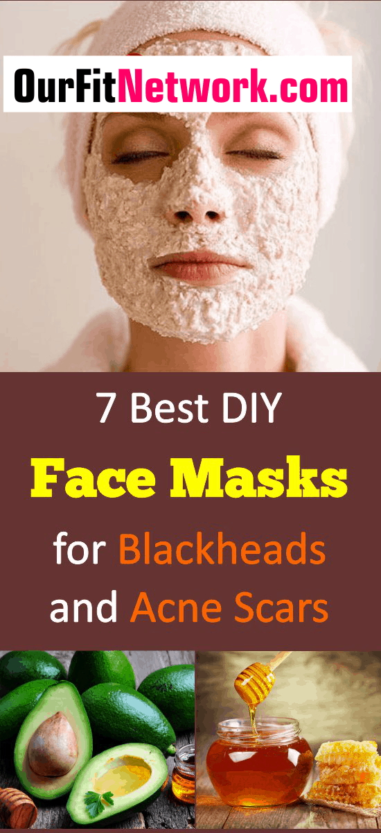 Clearing off acne scars and blackheads is now very easy with face masks. Check out these DIY face masks that will give you a flawless face in no time. #facemasks #DIYfcaemasks #acnescars