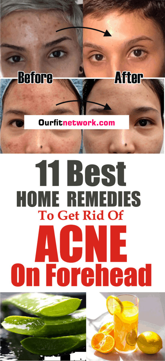 11 Best Acne Remedies To Get Rid Of Acne On Forehead Overnight- #acneonforehead #foreheadacne #foreheadacnetreatment #foreheadacneremedies #beauty #beautytips #skincare #skincaretips #remedies #homeremedies #DIY #acne #acnescars #darkspots #skinspots