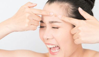11 Best Acne Remedies To Get Rid Of Acne On Forehead Overnight