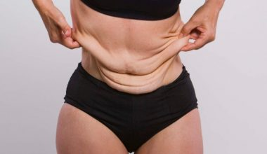 How To Tighten Saggy Skin After Weight Loss