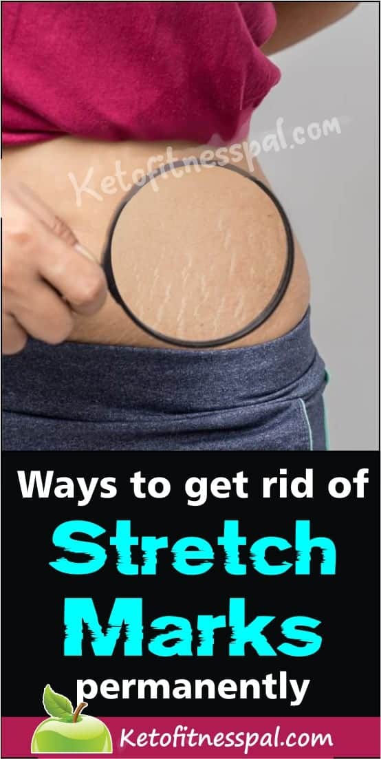 For many people, the appearance of stretch marks on the body has become a real pain. If you are looking for natural ways to get rid of stretch marks naturally, here are natural treatments that lighten stretch marks and help to make them fade.