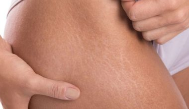 How To Get Rid Of Stretch Marks That Actually Work