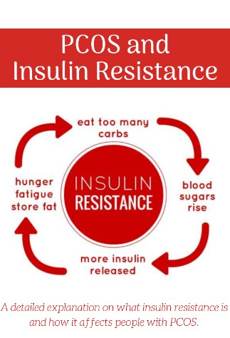 PCOS and Insulin Resistance- The relationship